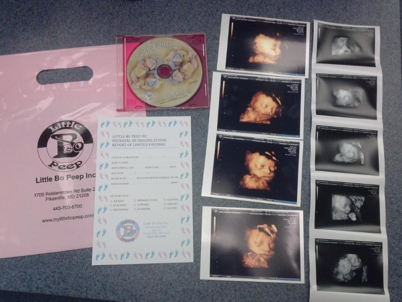 3D / 4D Ultrasound Packages - pee3 800x600